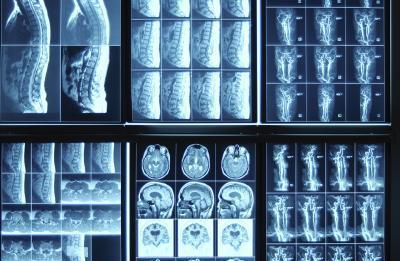 Come fare x ray vision su gimp myclads come fare x ray vision su gimp ccuart Image collections