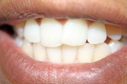 Come fare i denti più bianchi in foto