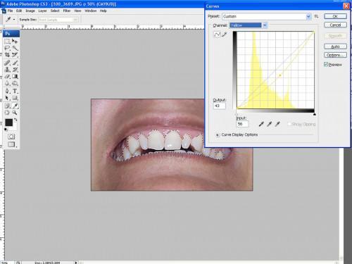 Come fare i denti più bianchi Con Photoshop
