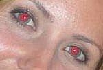 Come rimuovere gli occhi rossi da una foto in Photoshop